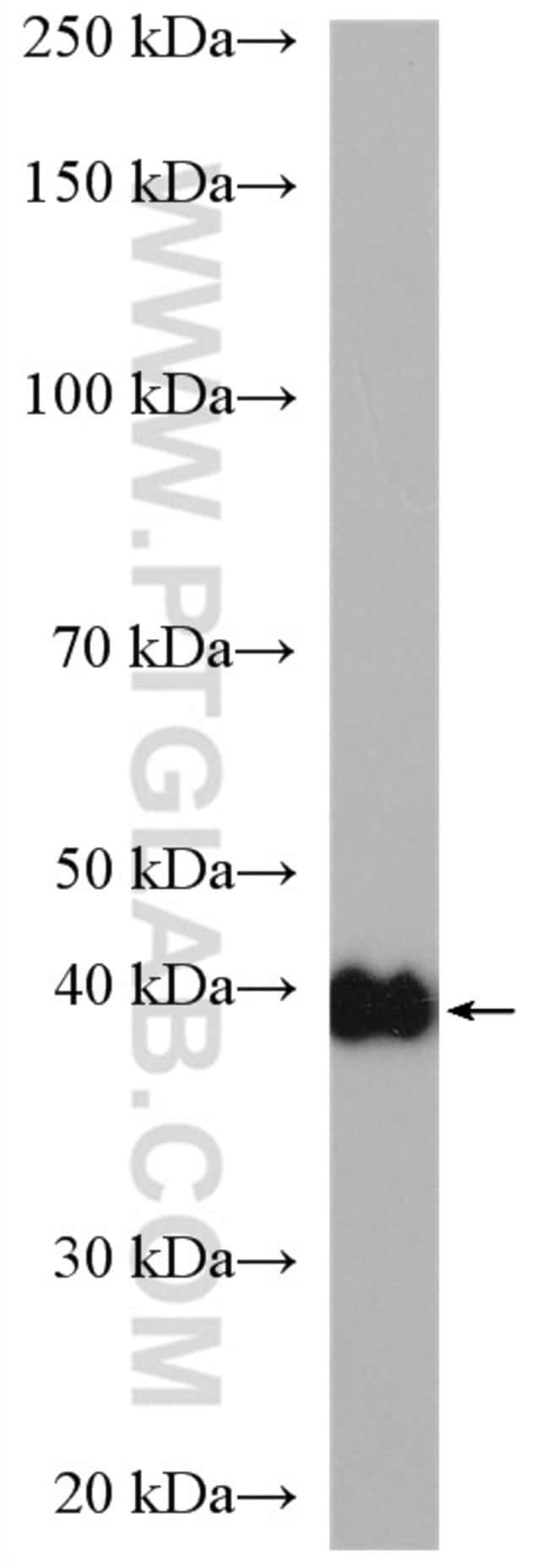 CSNK2A1 Rabbit anti-Human, Mouse, Rat, Polyclonal, Proteintech 150 μL; Unconjugated Ver productos