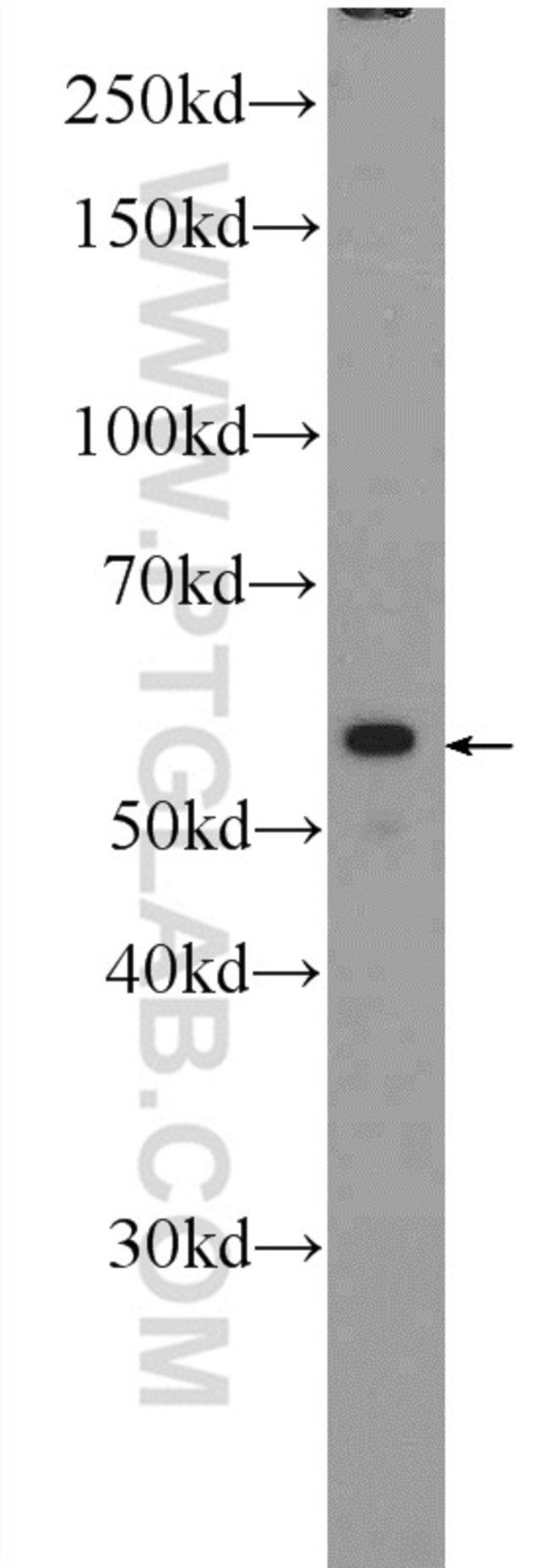 POLG2 Rabbit anti-Human, Mouse, Rat, Polyclonal, Proteintech 150 μL; Unconjugated Ver productos