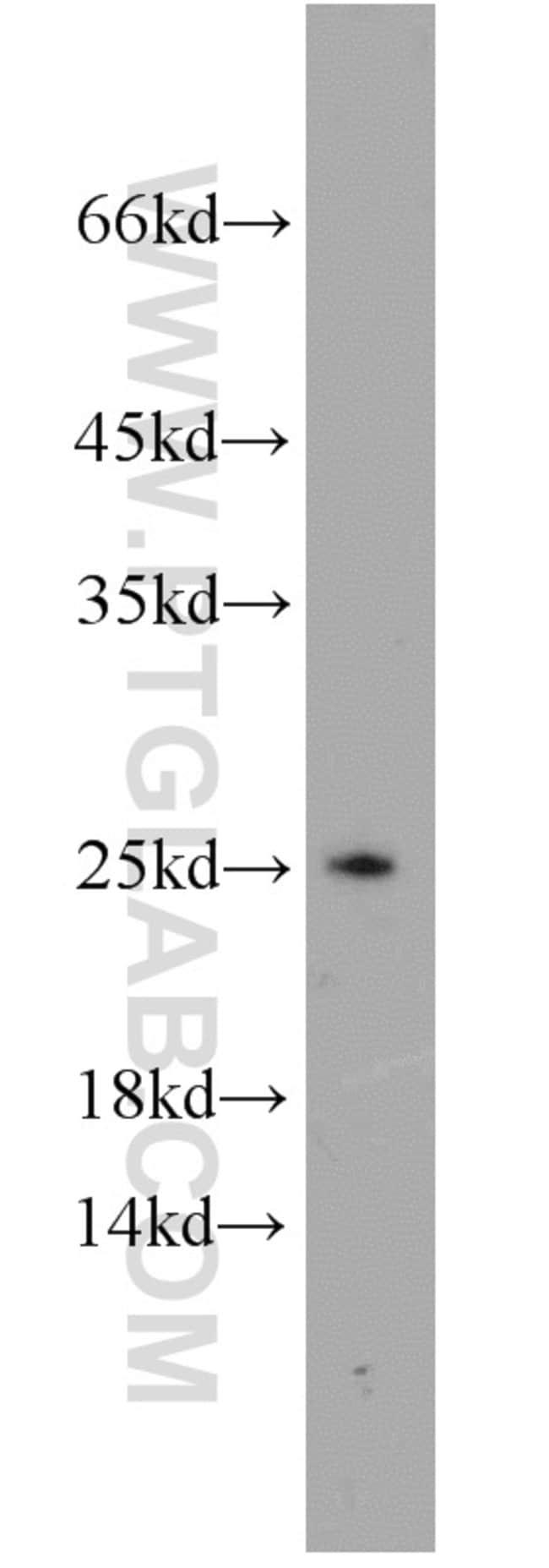 PSMB4 Rabbit anti-Human, Polyclonal, Proteintech 150 μL; Unconjugated Ver productos