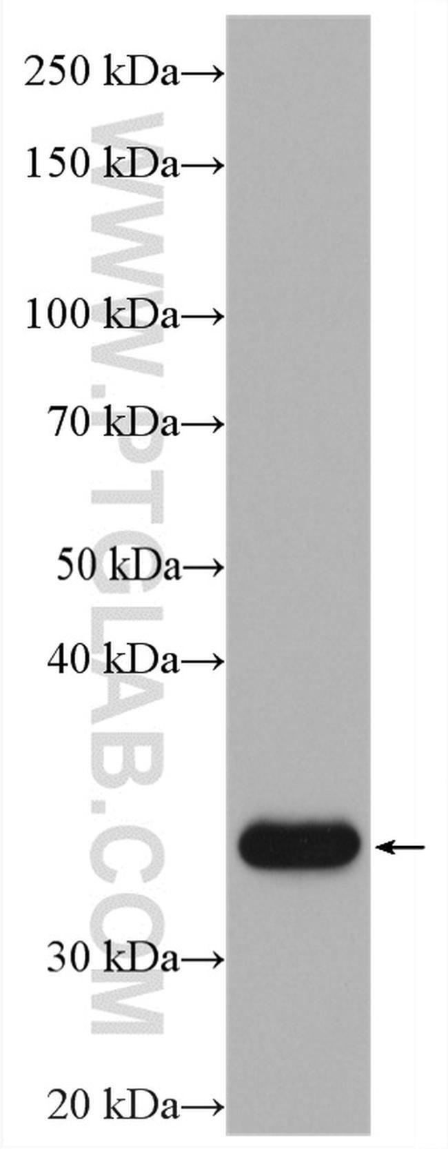 IGFBP2 Rabbit anti-Human, Mouse, Polyclonal, Proteintech 150 μL; Unconjugated Ver productos