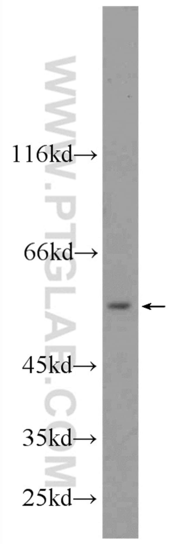 SHMT2 Rabbit anti-Human, Mouse, Rat, Polyclonal, Proteintech 150 μL; Unconjugated Ver productos
