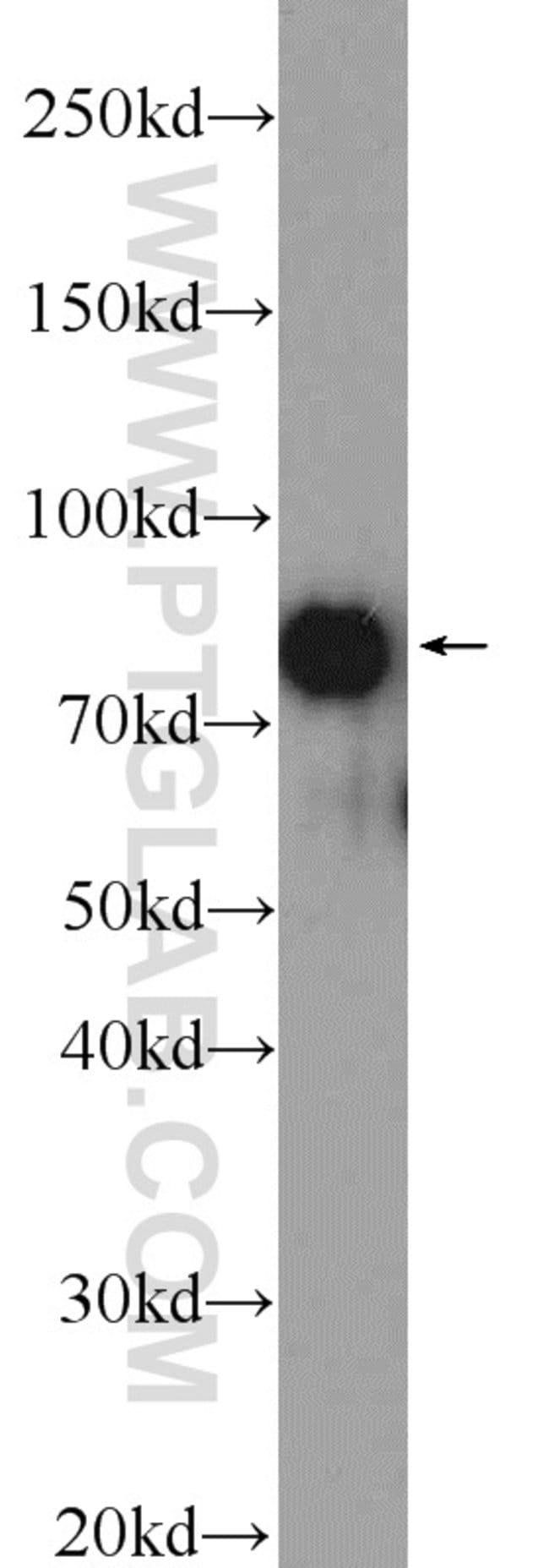 CUL3 Rabbit anti-Human, Mouse, Rat, Polyclonal, Proteintech 150 μL; Unconjugated Ver productos