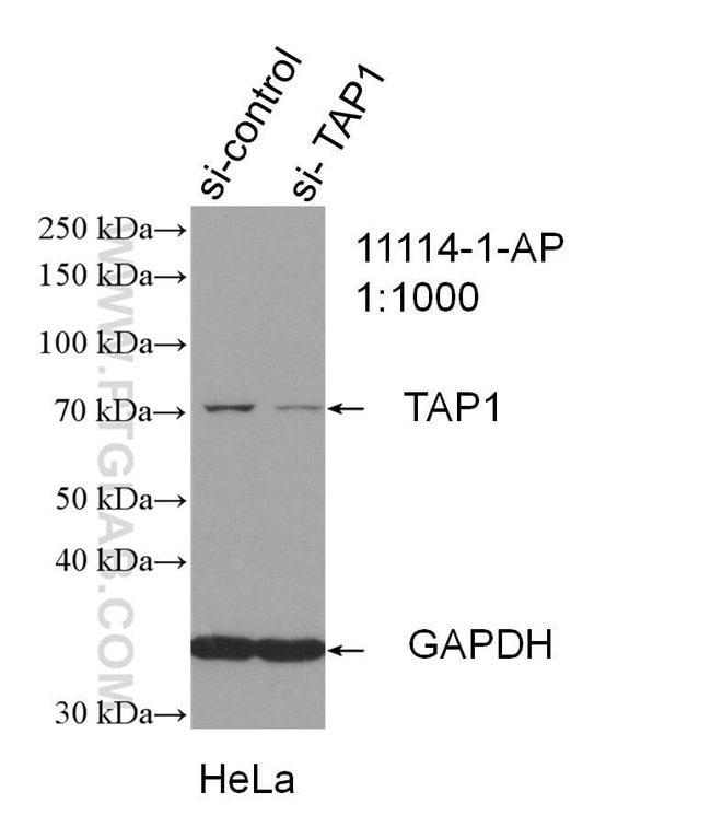TAP1 Rabbit anti-Human, Mouse, Rat, Polyclonal, Proteintech 150 μL; Unconjugated Ver productos