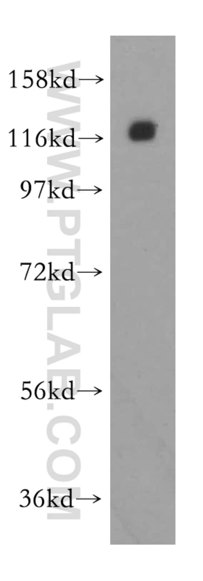 CNOT3 Rabbit anti-Human, Mouse, Rat, Polyclonal, Proteintech 150 μL; Unconjugated Ver productos