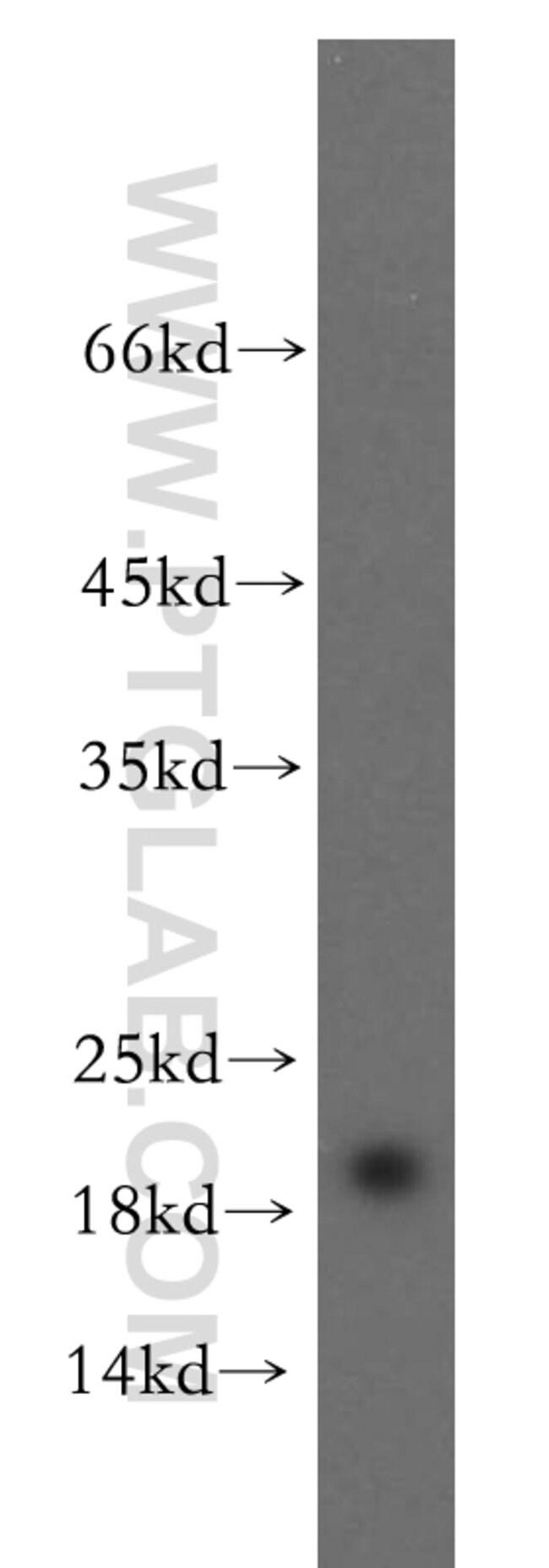 RTN2 Rabbit anti-Human, Mouse, Rat, Polyclonal, Proteintech 150 μL; Unconjugated Ver productos