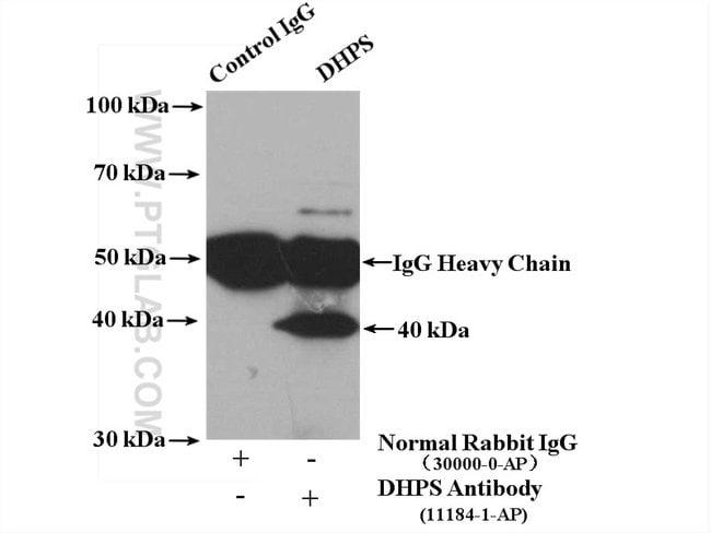 DHPS Rabbit anti-Human, Mouse, Rat, Polyclonal, Proteintech 150 μL; Unconjugated Ver productos