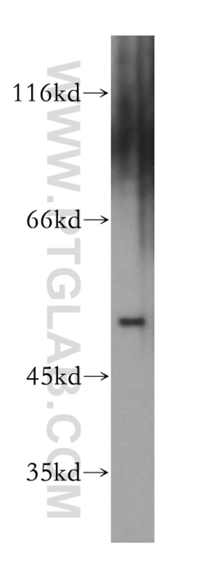 AEBP2 Rabbit anti-Human, Mouse, Rat, Polyclonal, Proteintech 20 μL; Unconjugated Ver productos