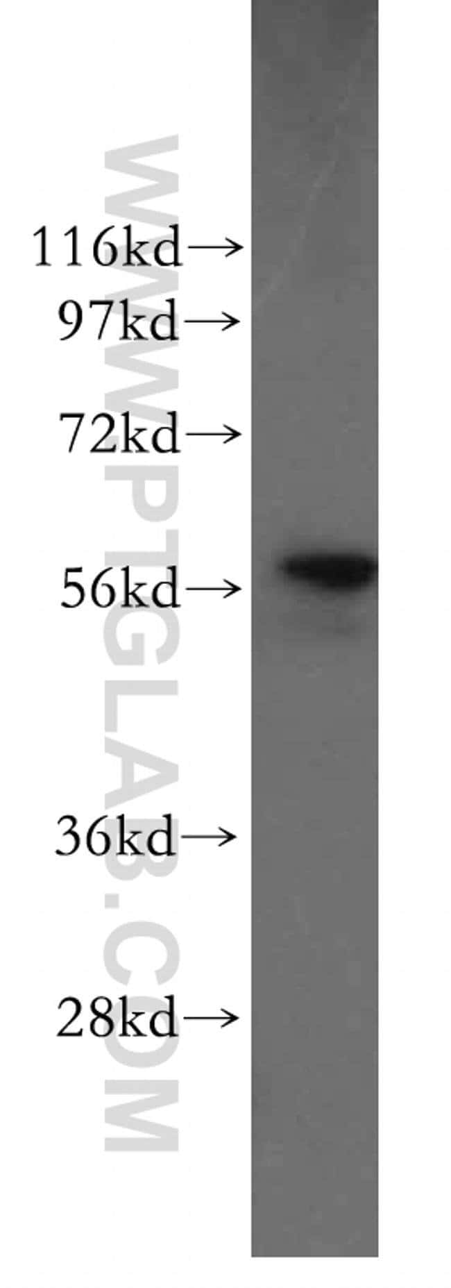 PDI Rabbit anti-Human, Mouse, Rat, Polyclonal, Proteintech 150 μL; Unconjugated Ver productos