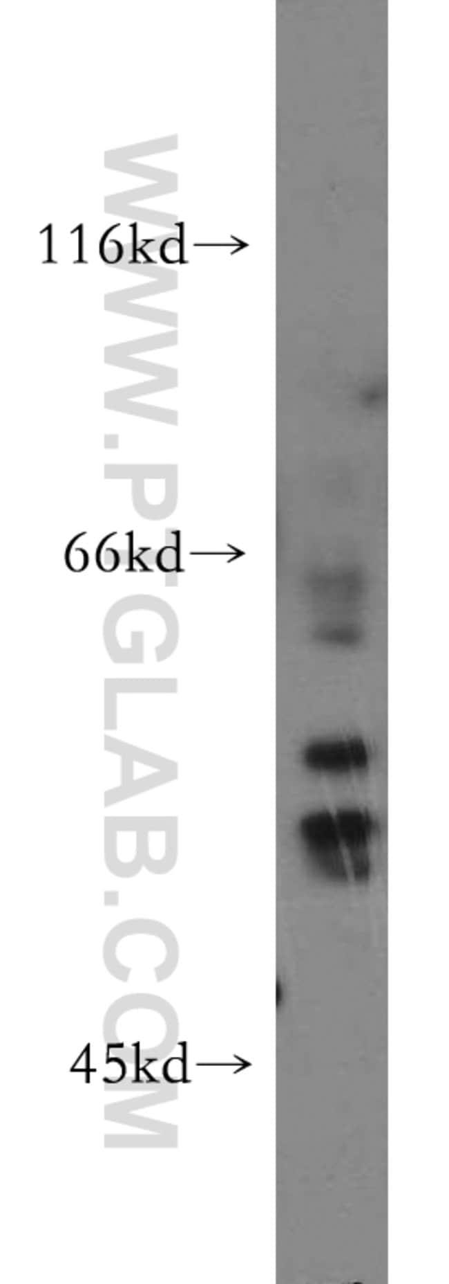 HARS2 Rabbit anti-Human, Mouse, Rat, Polyclonal, Proteintech 150 μL; Unconjugated Ver productos