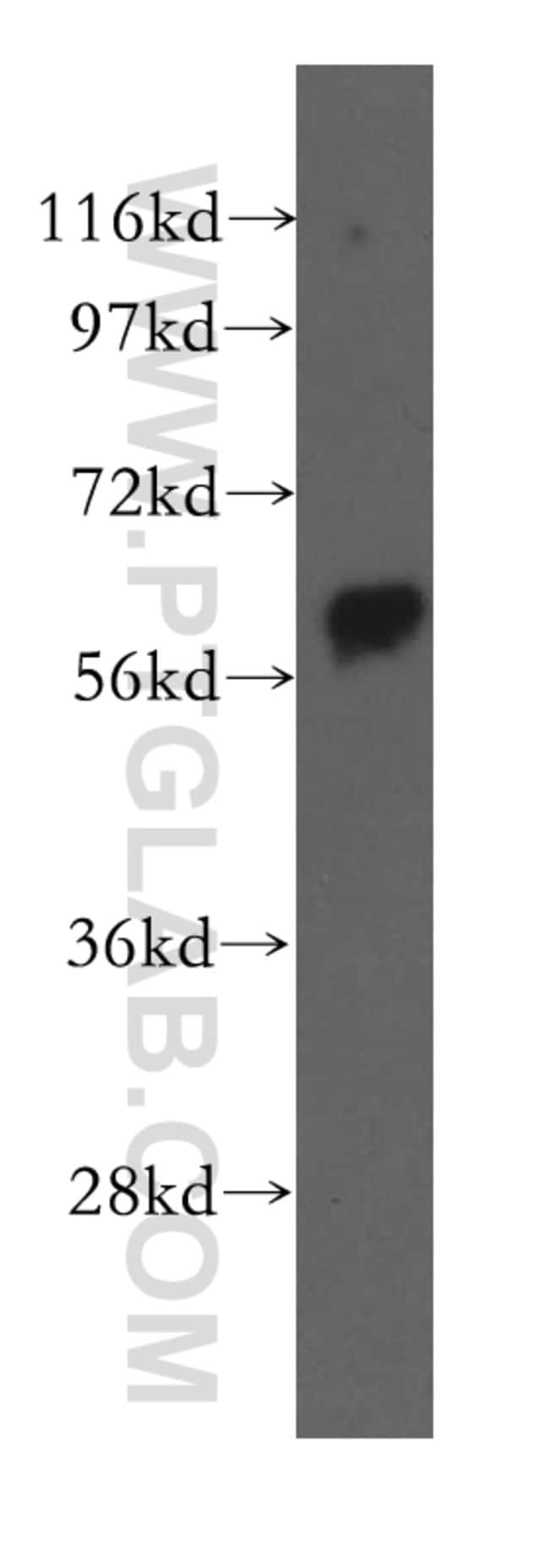 Beclin 1 Rabbit anti-Human, Mouse, Rat, Polyclonal, Proteintech 150 μL; Unconjugated Ver productos