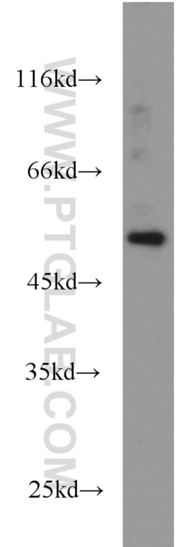 FLI1 Rabbit anti-Human, Mouse, Polyclonal, Proteintech 150 μL; Unconjugated Ver productos