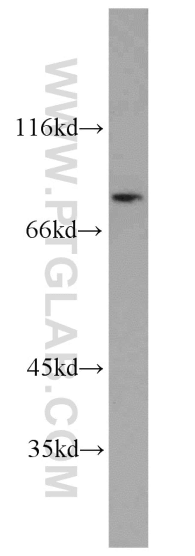 HPS6 Rabbit anti-Human, Mouse, Rat, Polyclonal, Proteintech 150 μL; Unconjugated Ver productos