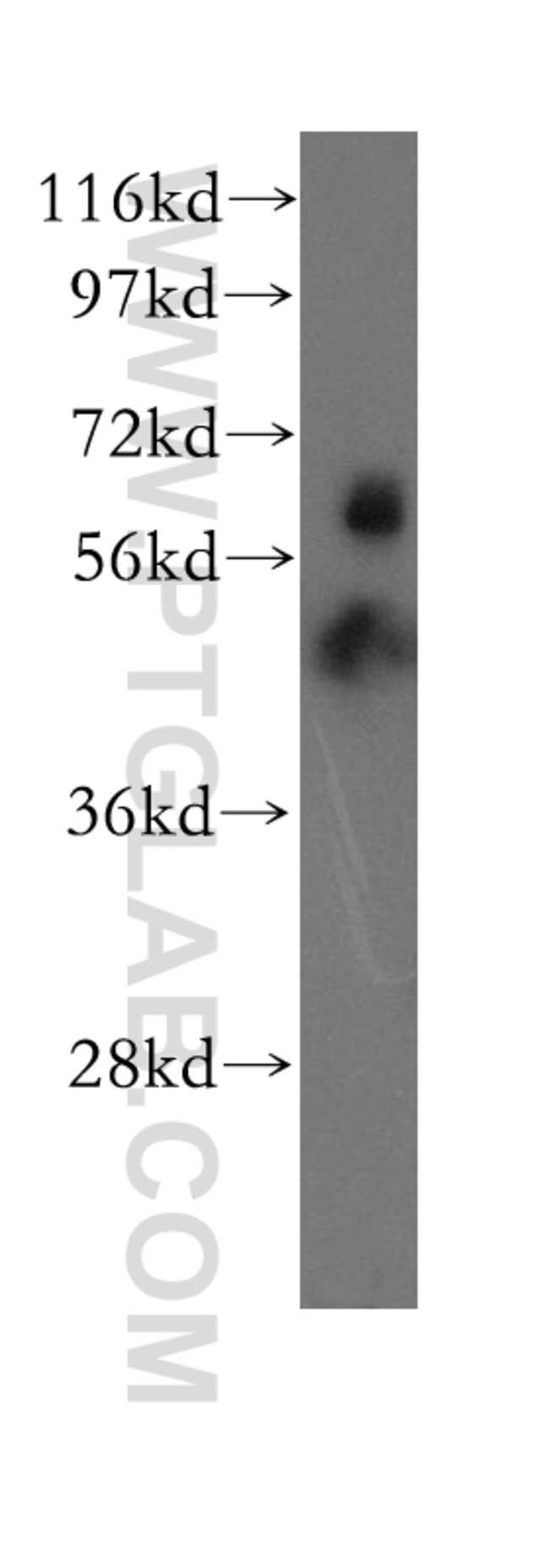 EHD4 Rabbit anti-Human, Mouse, Rat, Polyclonal, Proteintech 150 μL; Unconjugated Ver productos