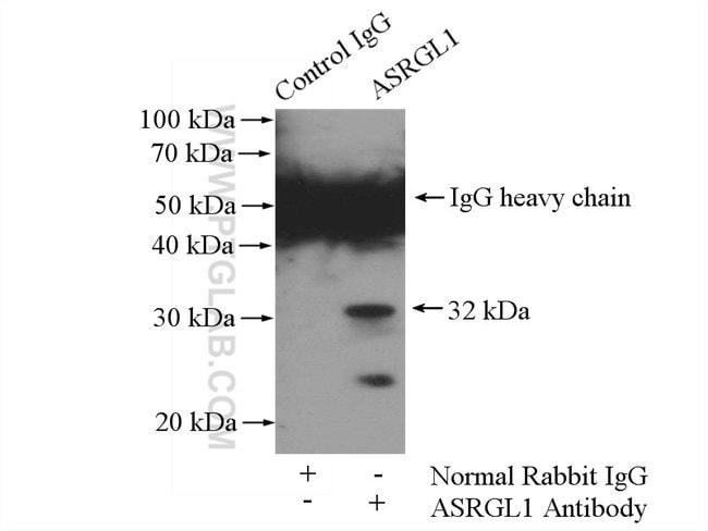 ASRGL1 Rabbit anti-Human, Mouse, Rat, Polyclonal, Proteintech 150 μL; Unconjugated Ver productos