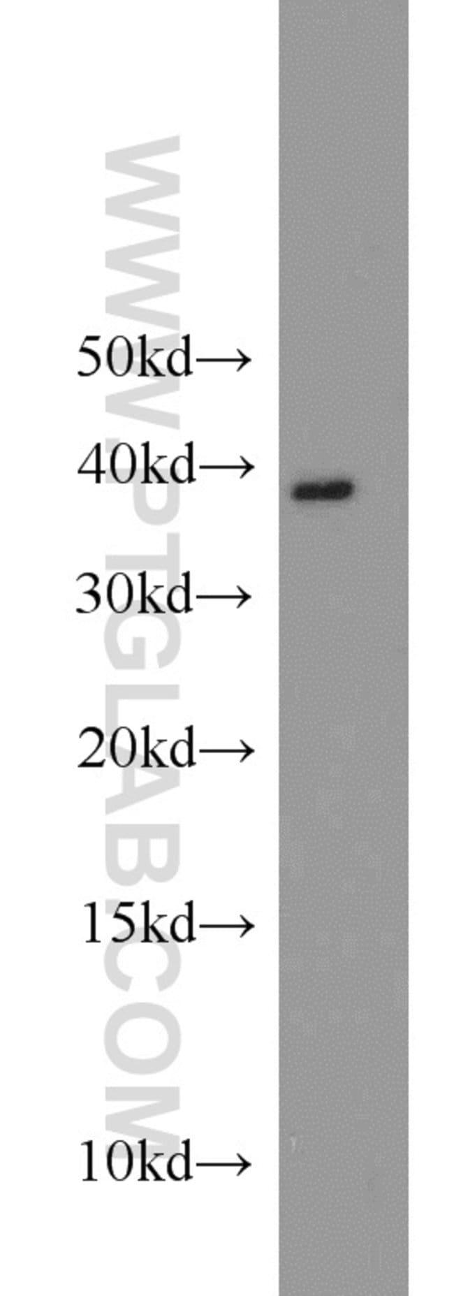 APOL1 Rabbit anti-Human, Polyclonal, Proteintech 20 μL; Unconjugated Ver productos