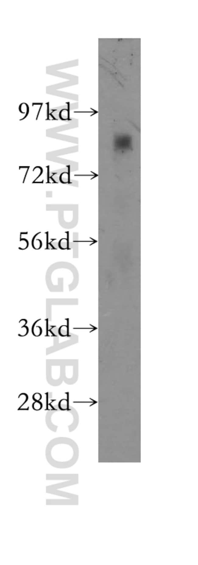CHPF C-terminal Rabbit anti-Human, Mouse, Rat, Polyclonal, Proteintech 20 μL; Unconjugated Ver productos