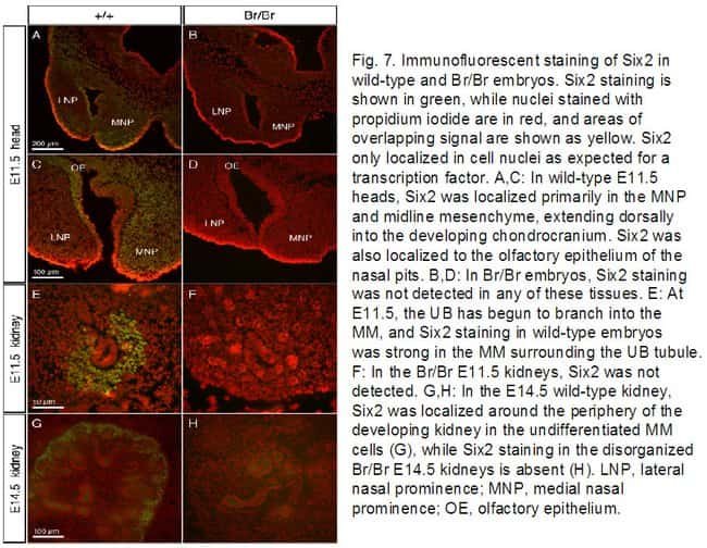 SIX2 Rabbit anti-Human, Mouse, Rat, Polyclonal, Proteintech 20 μL; Unconjugated Ver productos
