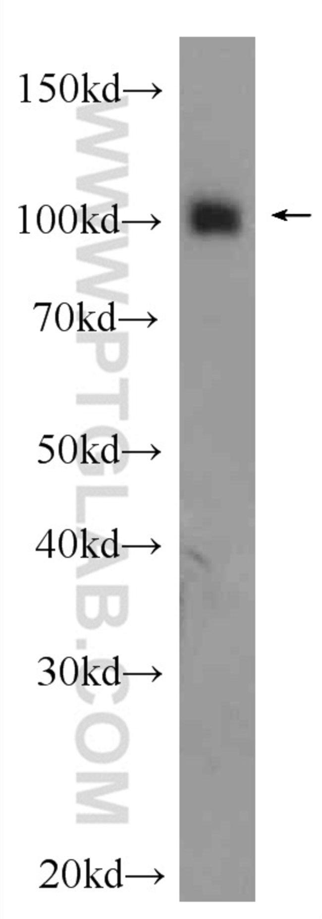 OGT Rabbit anti-Human, Mouse, Rat, Polyclonal, Proteintech 20 μL; Unconjugated Ver productos
