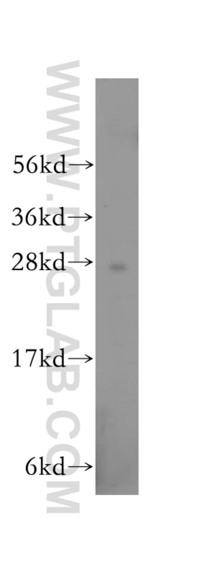 RABL2B Rabbit anti-Human, Polyclonal, Proteintech 20 μL; Unconjugated Ver productos