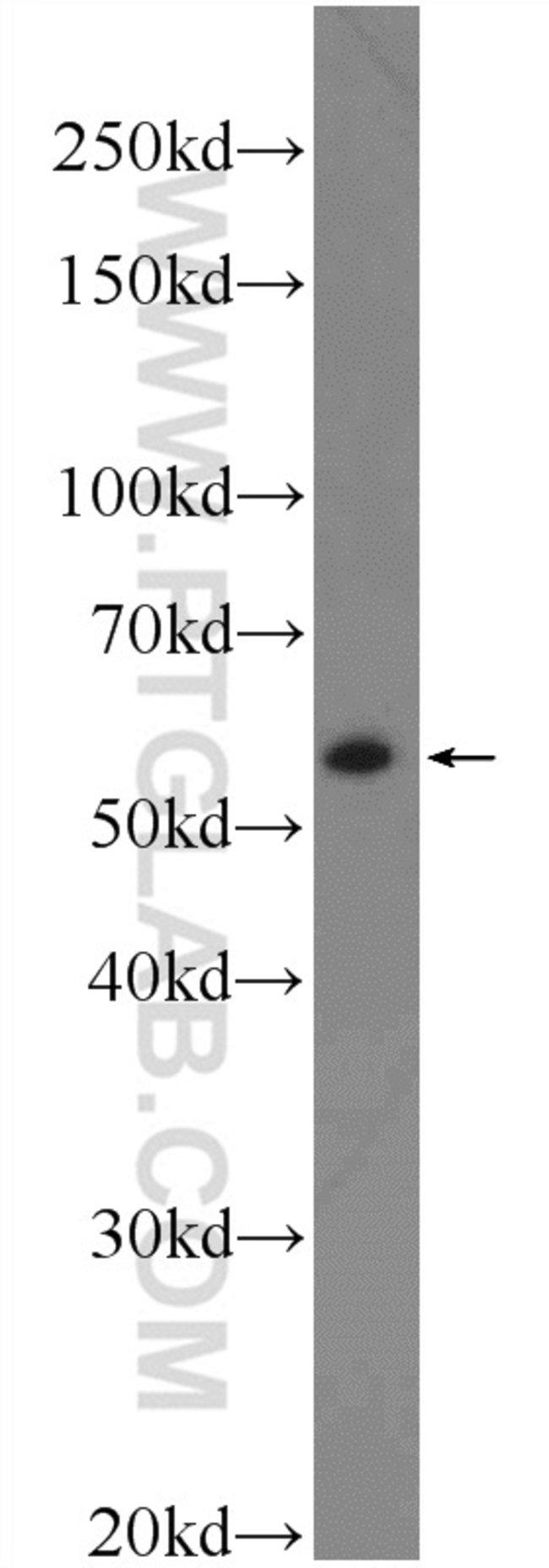 AP4M1 Rabbit anti-Human, Mouse, Rat, Polyclonal, Proteintech 20 μL; Unconjugated Ver productos