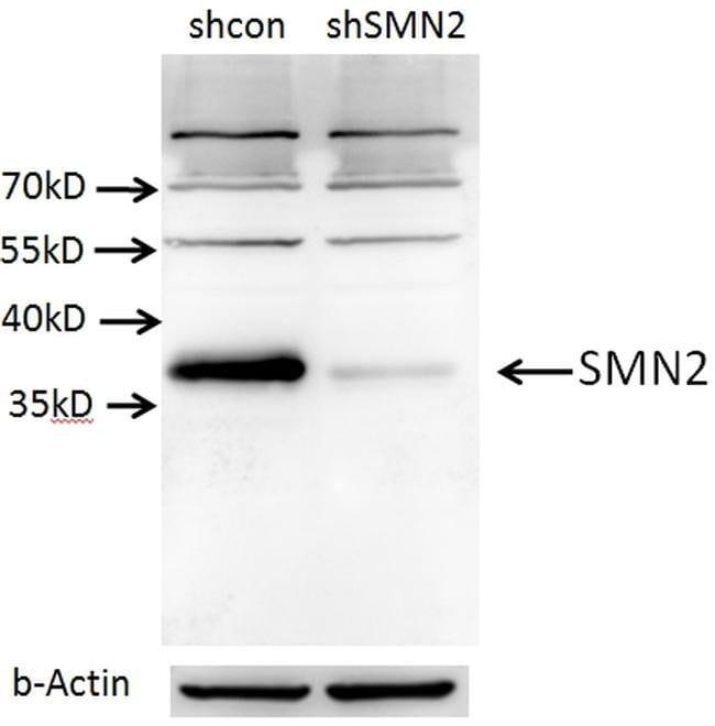 SMN Rabbit anti-Human, Mouse, Rat, Polyclonal, Proteintech 20 μL; Unconjugated Ver productos