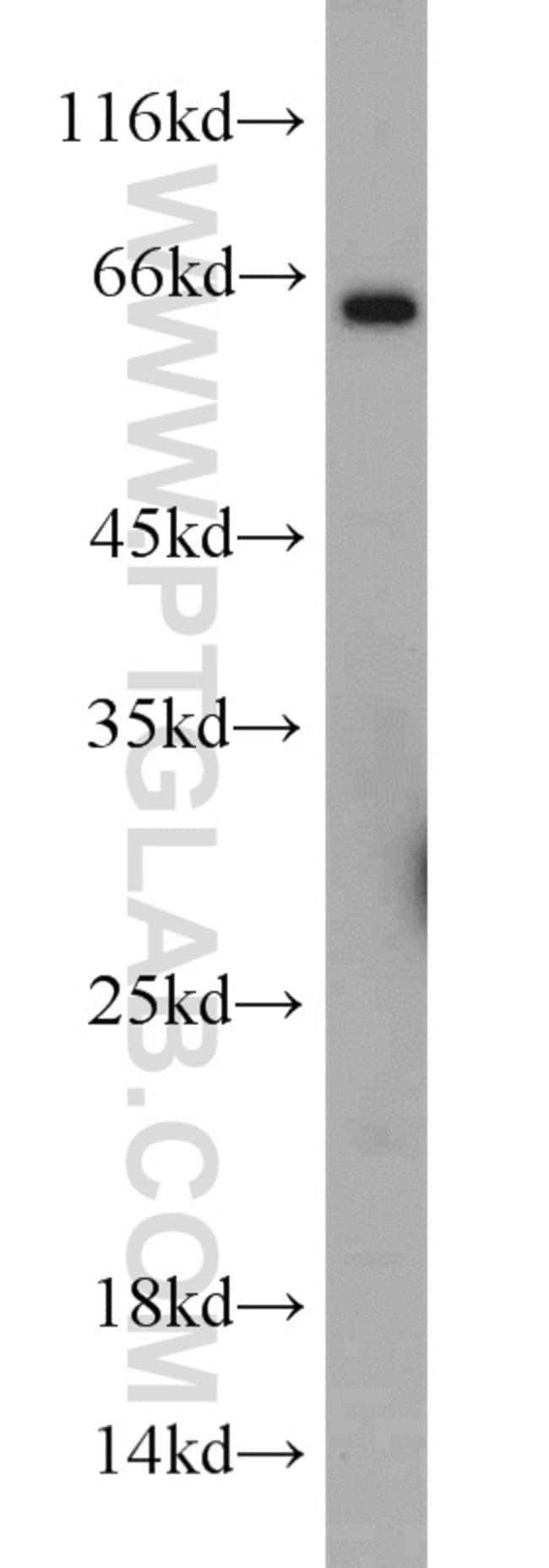 TWIST2 Rabbit anti-Human, Mouse, Polyclonal, Proteintech 20 μL; Unconjugated Ver productos