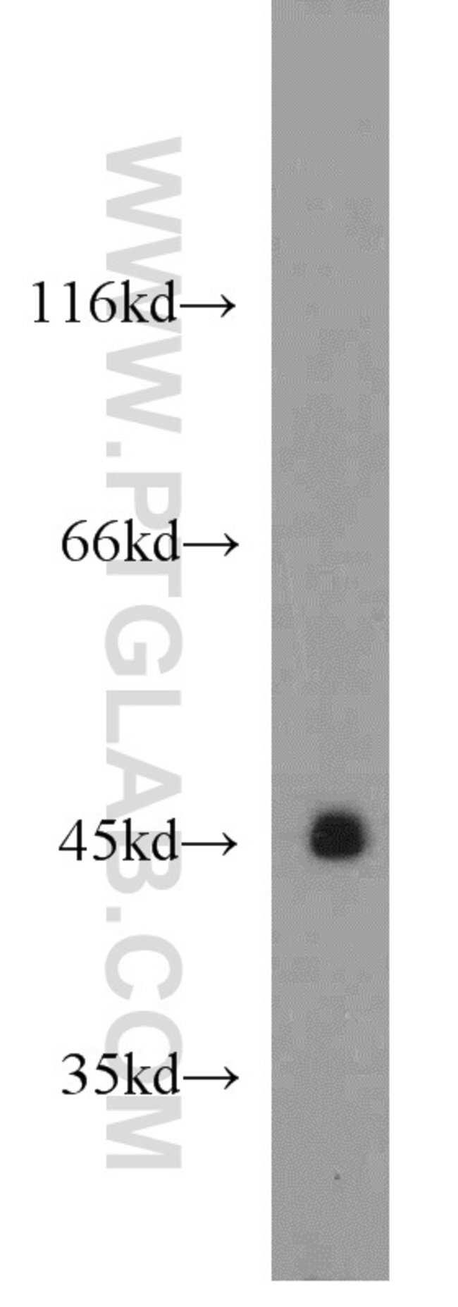 PANK1 Rabbit anti-Human, Mouse, Rat, Polyclonal, Proteintech 20 μL; Unconjugated Ver productos