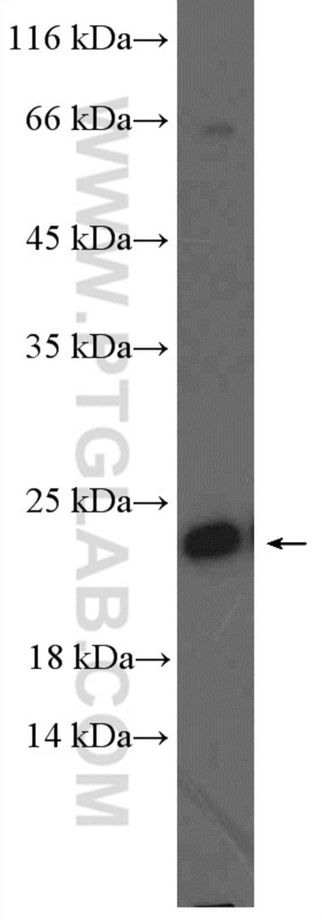 RAB10 Rabbit anti-Human, Mouse, Rat, Polyclonal, Proteintech 20 μL; Unconjugated Ver productos