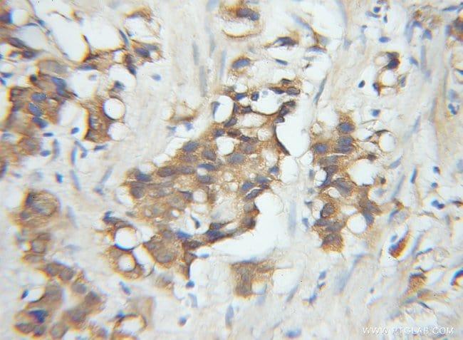 SPCS1 Rabbit anti-Human, Polyclonal, Proteintech 20 μL; Unconjugated Ver productos