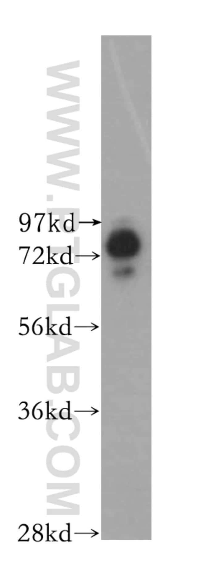 BRD3 Rabbit anti-Human, Mouse, Rat, Polyclonal, Proteintech 20 μL; Unconjugated Ver productos