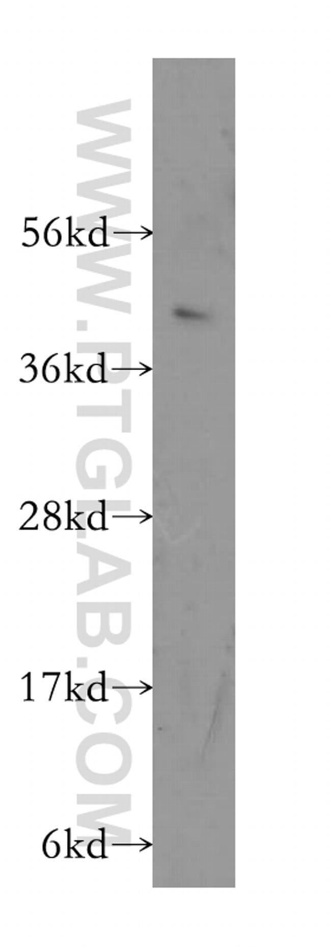 MS4A7 Rabbit anti-Human, Polyclonal, Proteintech 20 μL; Unconjugated Ver productos