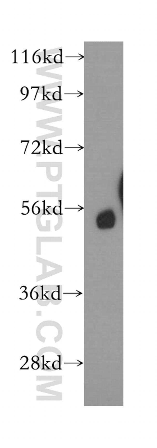 Calcyphosine 2 Rabbit anti-Human, Mouse, Polyclonal, Proteintech 20 μL; Unconjugated Ver productos