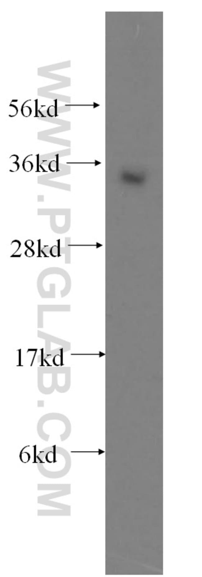 ATF1 Rabbit anti-Human, Mouse, Rat, Polyclonal, Proteintech 20 μL; Unconjugated Ver productos