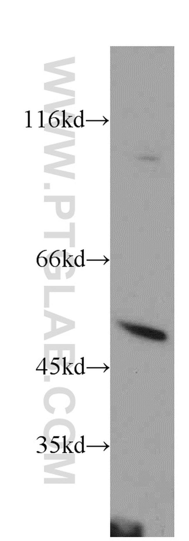 PSTPIP1 Rabbit anti-Human, Mouse, Rat, Polyclonal, Proteintech 20 μL; Unconjugated Ver productos