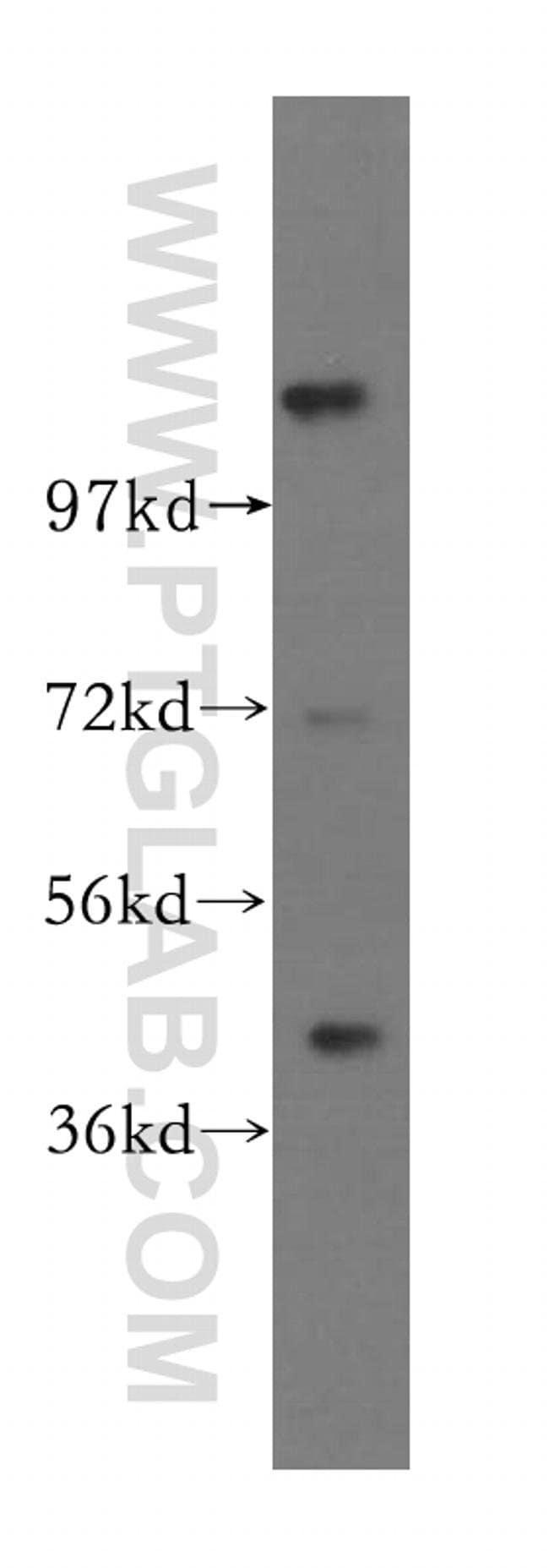 TIPIN Rabbit anti-Human, Polyclonal, Proteintech 20 μL; Unconjugated Ver productos