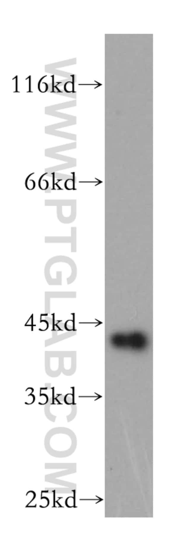 GDAP1L1 Rabbit anti-Human, Mouse, Polyclonal, Proteintech 20 μL; Unconjugated Ver productos
