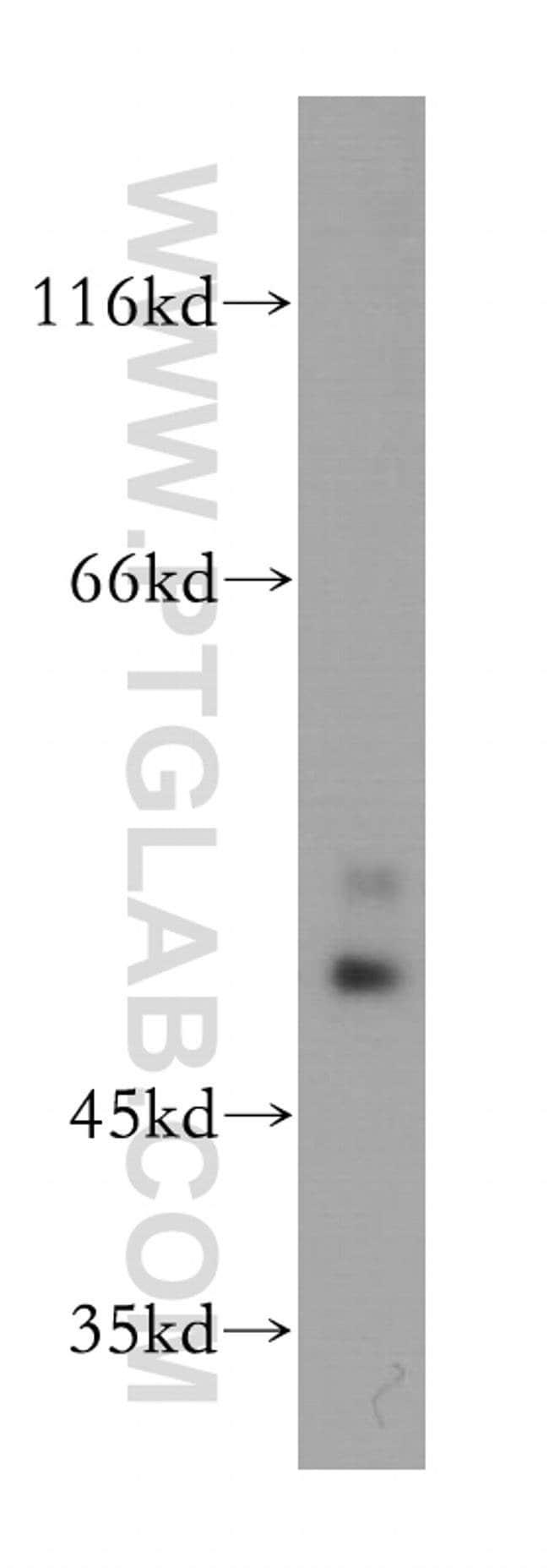 OLFM2 Rabbit anti-Human, Mouse, Rat, Polyclonal, Proteintech 20 μL; Unconjugated Ver productos