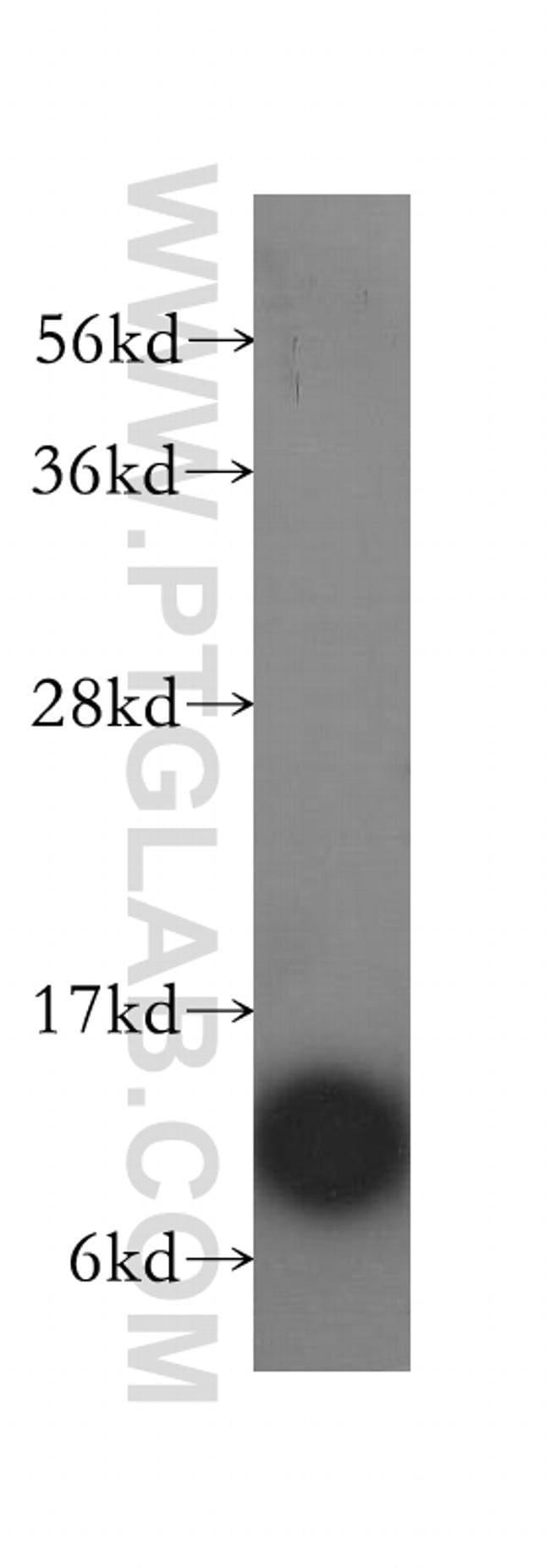 ATPIF1 Rabbit anti-Human, Polyclonal, Proteintech 20 μL; Unconjugated Ver productos