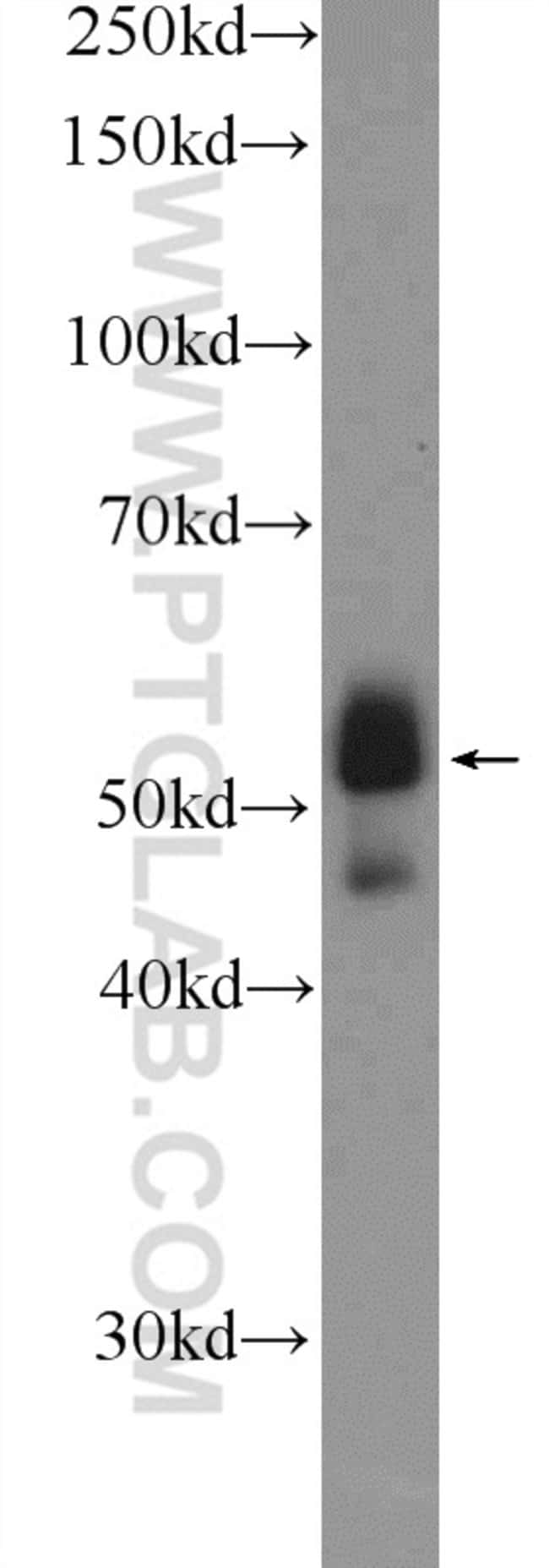 ETS1 Rabbit anti-Human, Mouse, Polyclonal, Proteintech 20 μL; Unconjugated Ver productos
