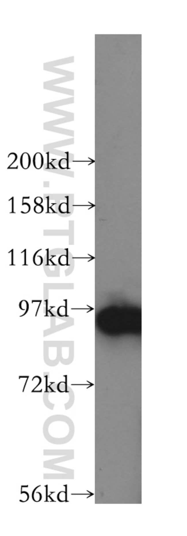 GPRASP2 Rabbit anti-Human, Mouse, Rat, Polyclonal, Proteintech 20 μL; Unconjugated Ver productos