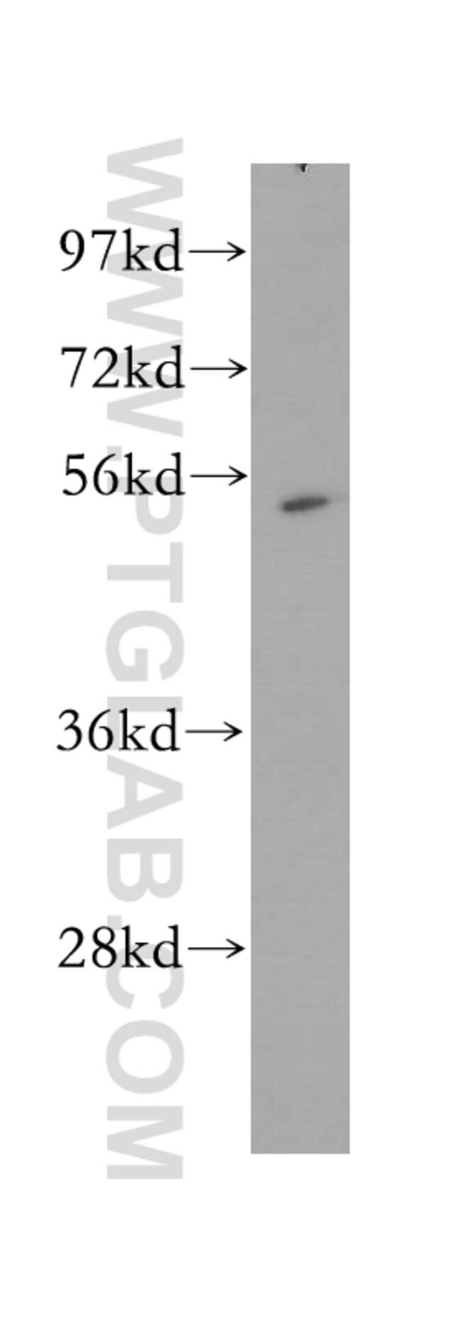 MINA Rabbit anti-Human, Mouse, Rat, Polyclonal, Proteintech 20 μL; Unconjugated Ver productos