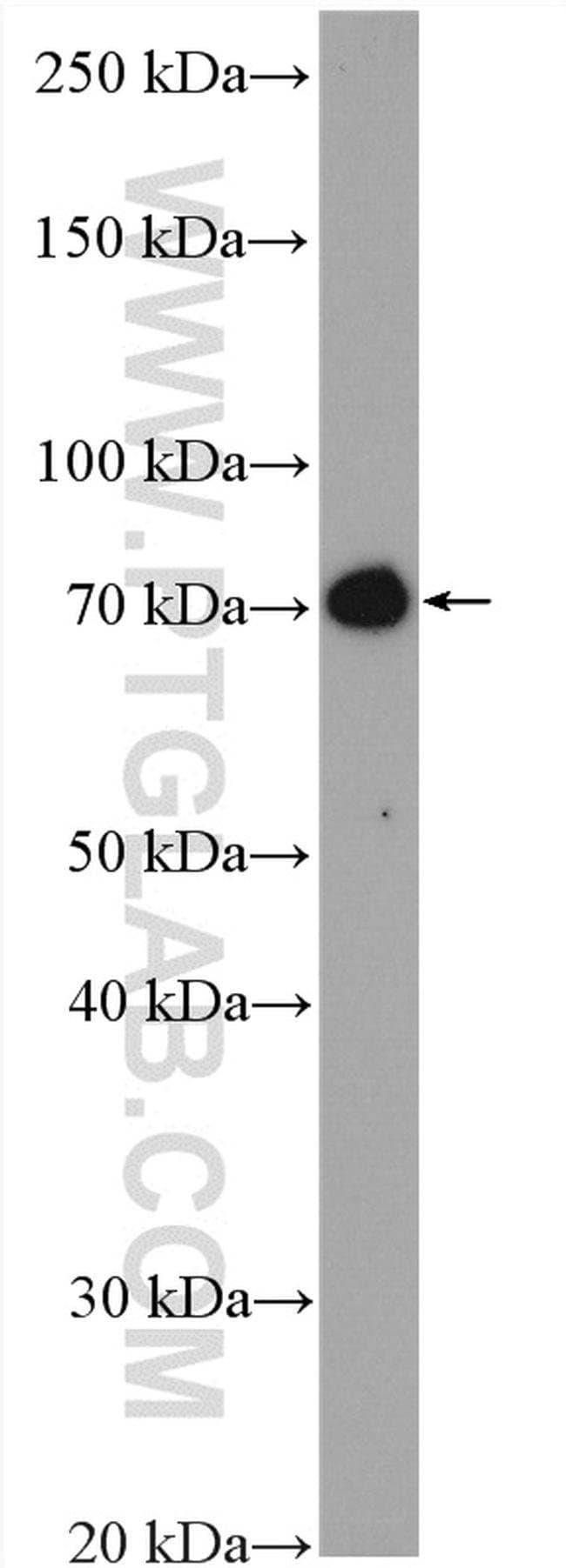 DYNC1I2 Rabbit anti-Human, Mouse, Rat, Polyclonal, Proteintech 20 μL; Unconjugated Ver productos