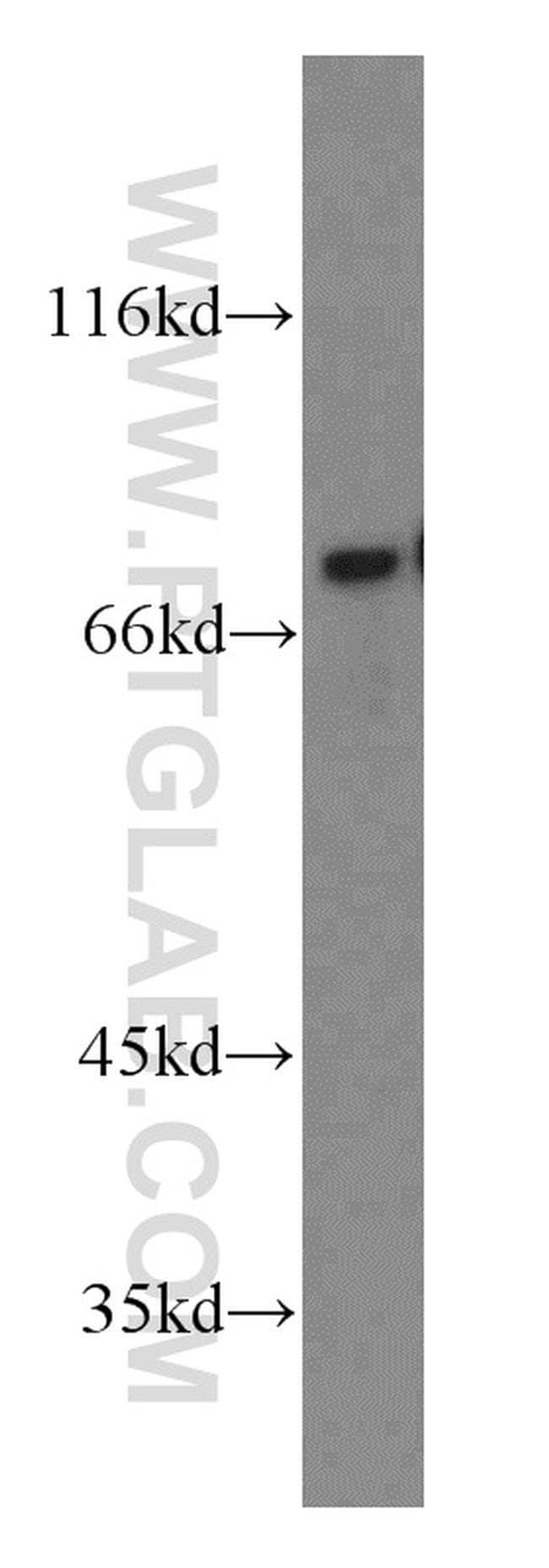 NUR77 Rabbit anti-Human, Mouse, Rat, Polyclonal, Proteintech 20 μL; Unconjugated Ver productos