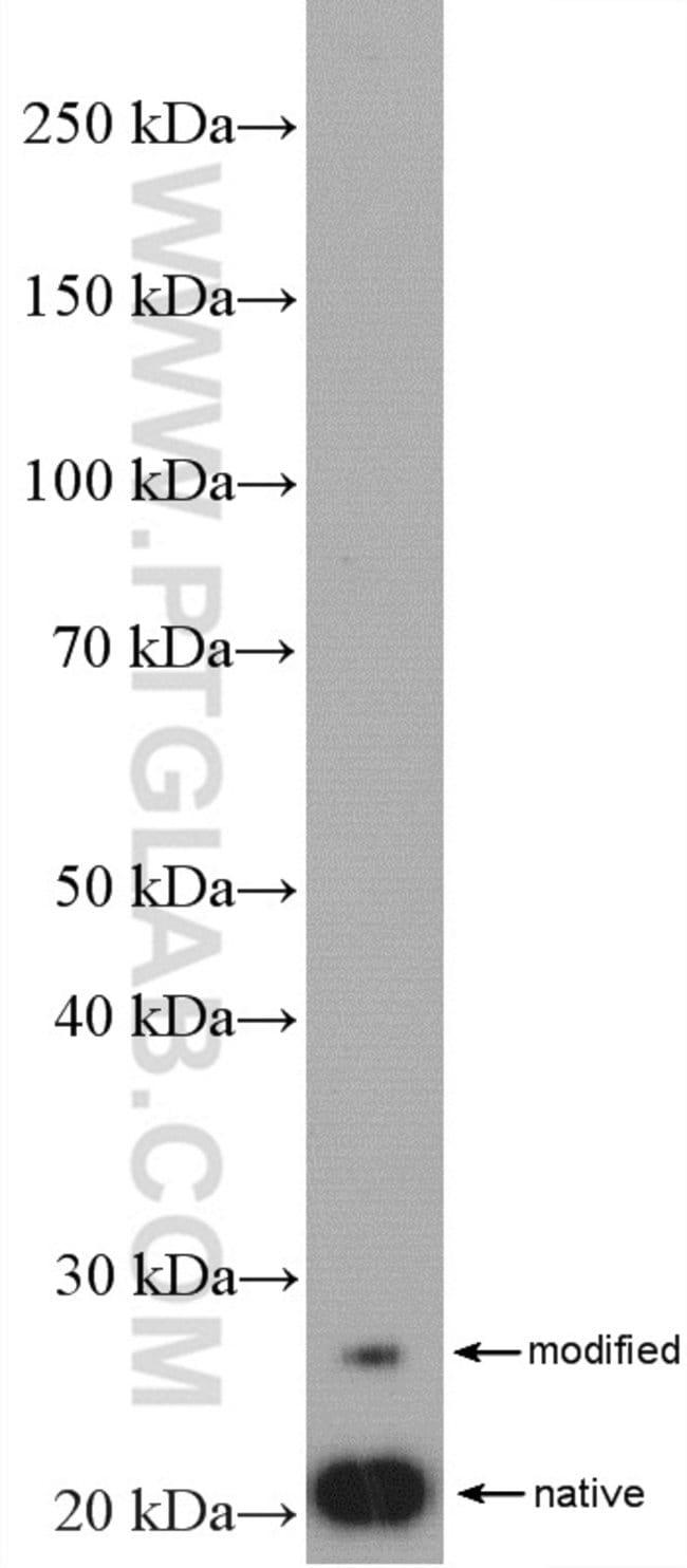 SSSCA1 Rabbit anti-Human, Mouse, Rat, Polyclonal, Proteintech 20 μL; Unconjugated Ver productos