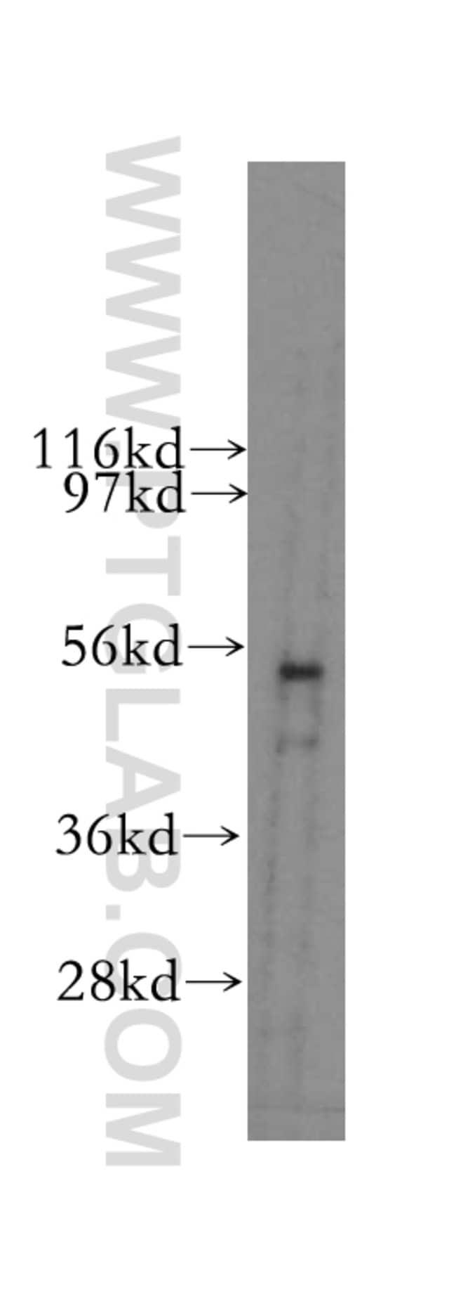 PLXDC2 Rabbit anti-Human, Mouse, Rat, Polyclonal, Proteintech 20 μL; Unconjugated Ver productos