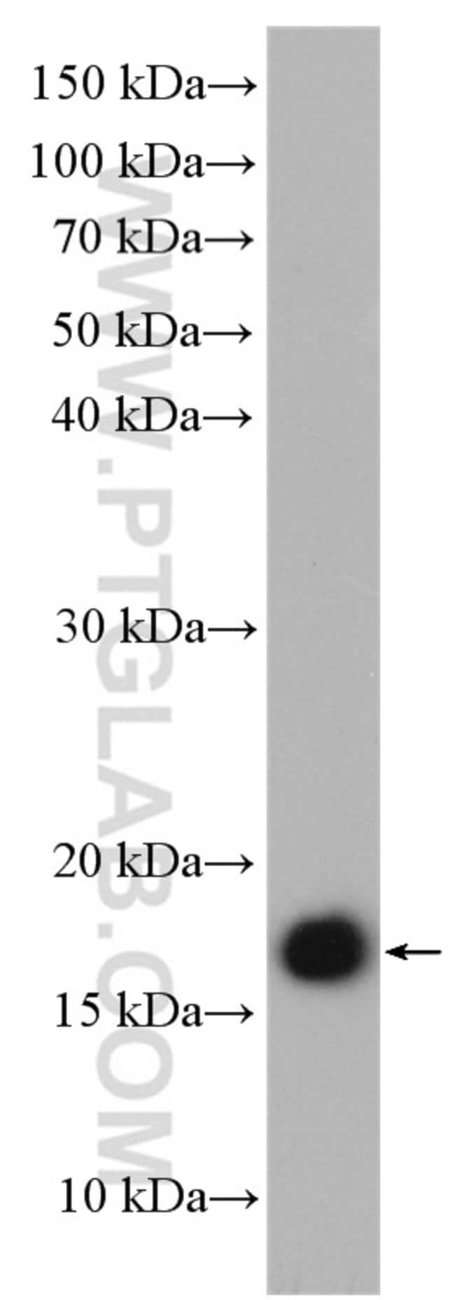 GEMIN6 Rabbit anti-Human, Mouse, Rat, Polyclonal, Proteintech 20 μL; Unconjugated Ver productos