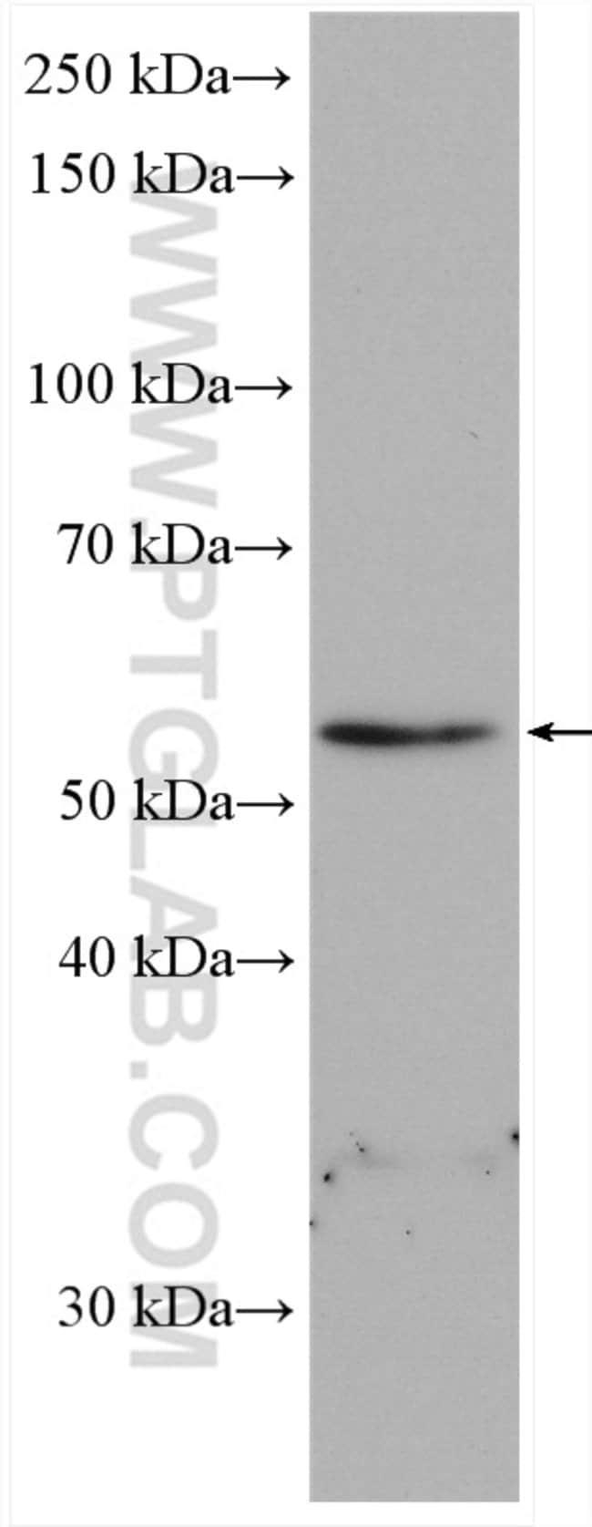 RAB3IP/Rabin8 Rabbit anti-Human, Mouse, Polyclonal, Proteintech 20 μL; Unconjugated Ver productos