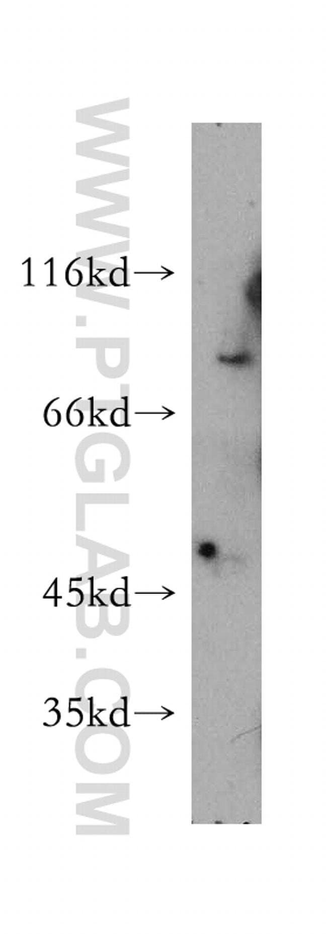 ASH2L Rabbit anti-Human, Mouse, Non-human primate, Rat, Polyclonal, Proteintech 20 μL; Unconjugated Ver productos
