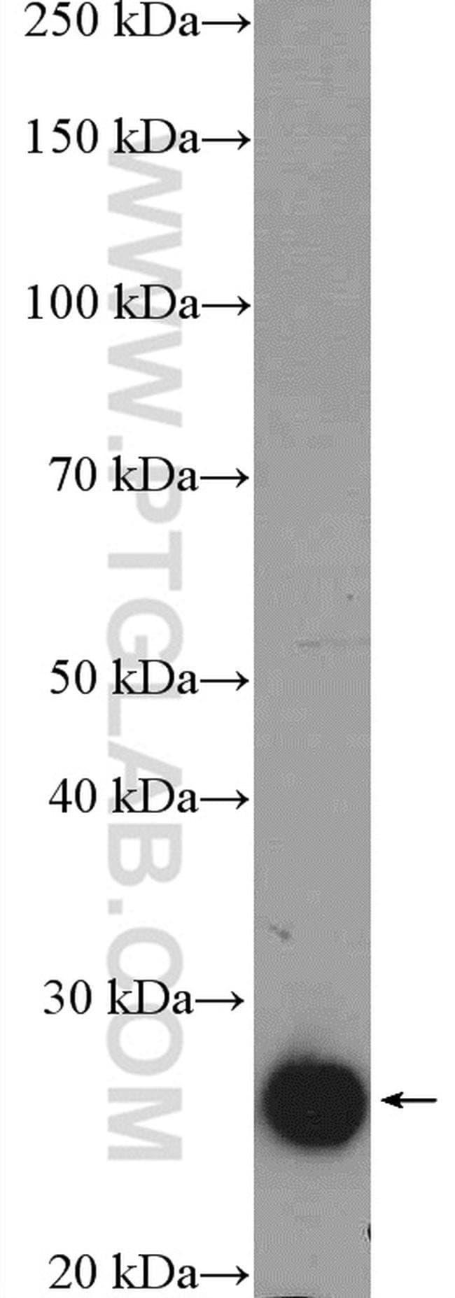 MRRF Rabbit anti-Human, Mouse, Rat, Polyclonal, Proteintech 150 μL; Unconjugated Ver productos