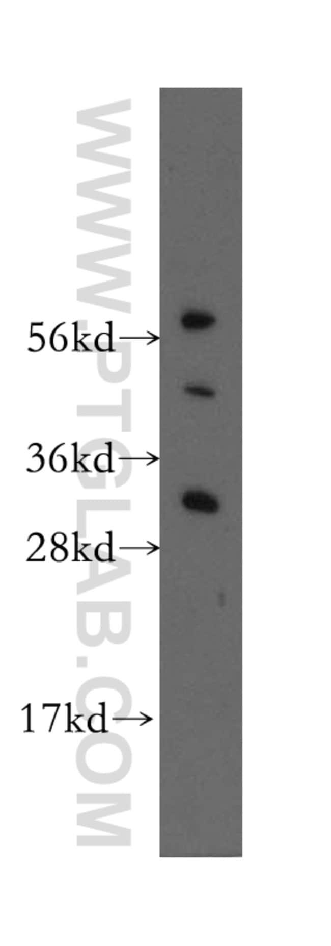 HDGFRP3 Rabbit anti-Human, Mouse, Rat, Polyclonal, Proteintech 150 μL; Unconjugated Ver productos
